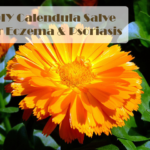 Calendula Salve Tutorial for Eczema and Psoriasis